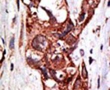 SAE1 Antibody (PA5-12193)