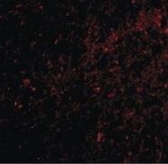 SAPAP3 Antibody (PA5-20465)