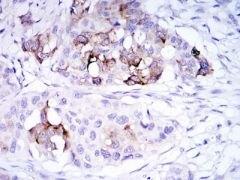 Mammaglobin A Antibody (MA5-15716)