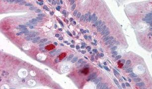 SEMA4B Antibody (PA5-34192)