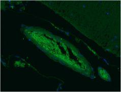 SEPT5 Antibody (MA5-17618)
