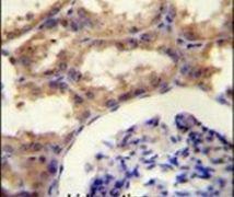 Septin-9 Antibody (PA5-13200)
