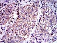 PAI1 Antibody (MA5-17171)