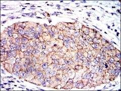 SERPINE1 Antibody (MA5-17171)