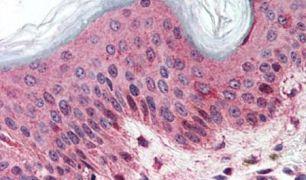 SLC5A9 Antibody (PA5-34212)