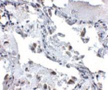 SH3BP4 Antibody (PA5-20747)