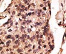 SIGLEC8 Antibody (PA5-11681)