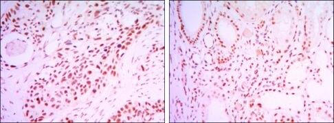 SIRT1 Antibody (MA5-15677)