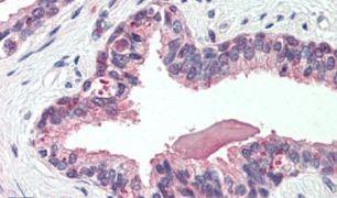 NKCC1 Antibody (PA5-34196)