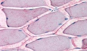 ASCT2 Antibody (PA5-33028)