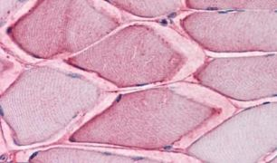 ASCT2 Antibody (PA5-33029)