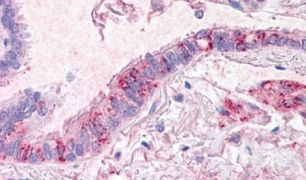 CTR1 Antibody (PA5-33032)