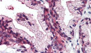 ZIP14 Antibody (PA5-33034)