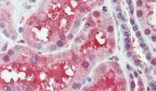 SLC44A2 Antibody (PA5-34205)