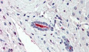 SLC5A1 Antibody (PA5-33038)