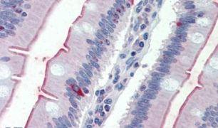 SLC5A1 Antibody (PA5-34208)