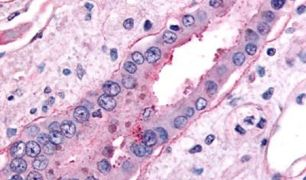 SGLT2 Antibody (PA5-34210)