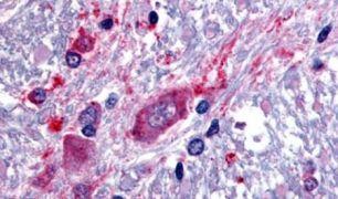 SLC5A3 Antibody (PA5-33041)