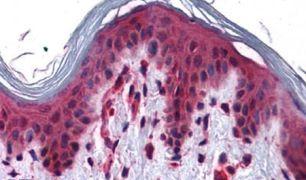 SLC5A6 Antibody (PA5-33046)
