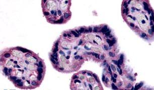 SLC7A5 Antibody (PA5-34216)