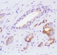 SLIT2 Antibody (MA5-16423)