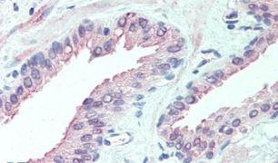 SLITRK6 Antibody (PA5-33055)