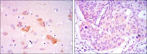 SMAD5 Antibody (MA5-15793)