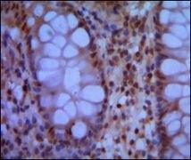 SMC1 Antibody (MA5-15583)