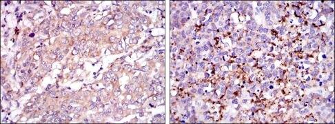SMN Antibody (MA5-15858)