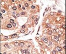 SMYD5 Antibody (PA5-13217)