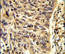 SNRPD1 Antibody (PA5-12460)