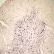 Sortilin Antibody (OSS00041G)