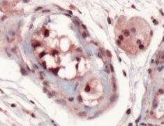 SOX9 Antibody (PA5-32597)