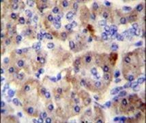 SPRED3 Antibody (PA5-23767)
