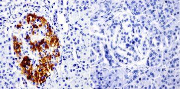 SRC3 Antibody (MA1-845)