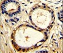 Cortactin Antibody (PA5-26254)
