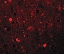 SRPX Antibody (PA5-20843)