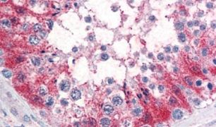 SRPX2 Antibody (PA5-33058)
