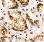 SSTR1 Antibody (PA3-108)