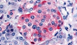SSTR1 Antibody (PA5-34219)