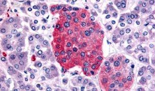 SSTR2 Antibody (PA5-34220)
