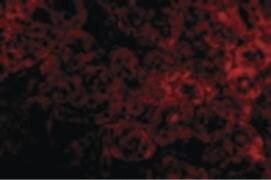 ST2 Antibody (PA5-20077)