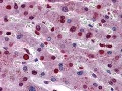 STAT3 Antibody (MA5-15473)