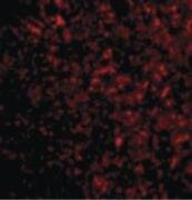 STEAP3 Antibody (PA5-20406)