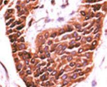 STK29 Antibody (PA5-14009)
