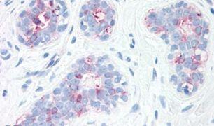 SYNGR2 Antibody (PA5-34230)