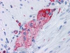 Synaptophysin Antibody (MA5-15623)
