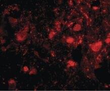 SLITRK3 Antibody (PA5-20473)