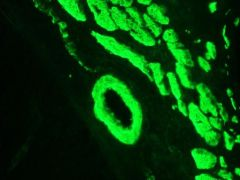Smoothelin Antibody (OMA1-06020)