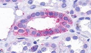 TAAR9 Antibody (PA5-34246)